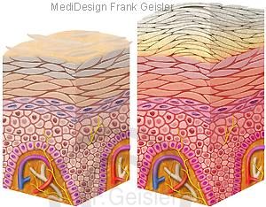 Schuppenflechte Psoriasis mit Schuppen der Epidermis Haut