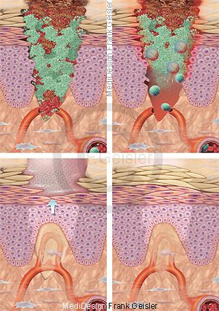 Wundheilung Blutgerinnung Entzündung Narbenbildung Narbe der Haut